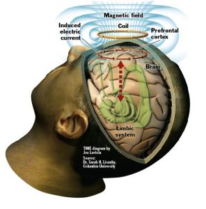 brain currents